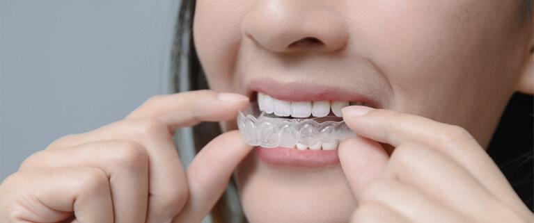 putting invisalign onto teeth